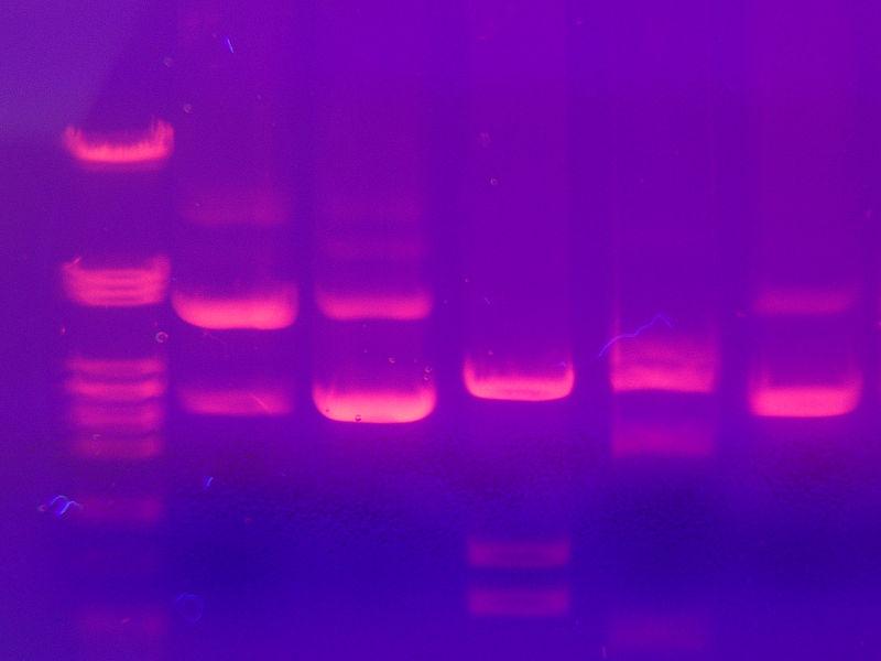 Estados Unidos dice 'no' a las patentes de genes humanos
